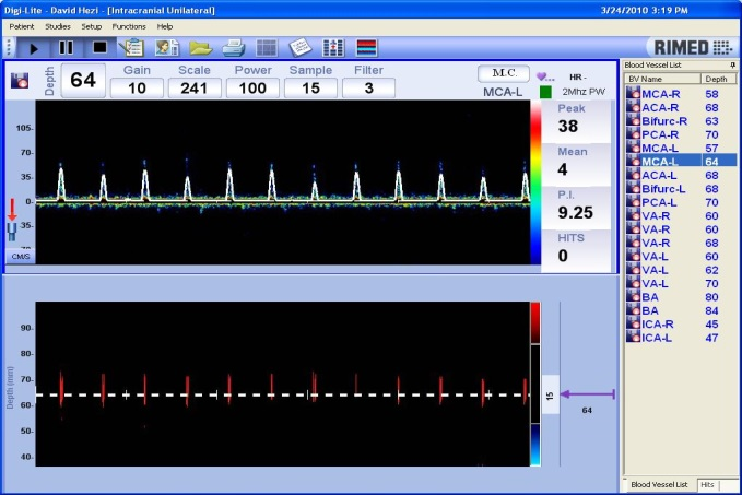 short_systolic_spikes